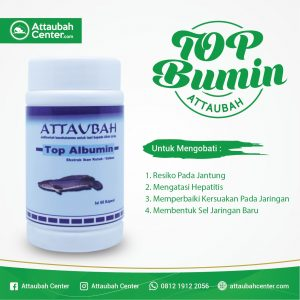 top albumin attaubah